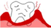 歯周病の進行度合い